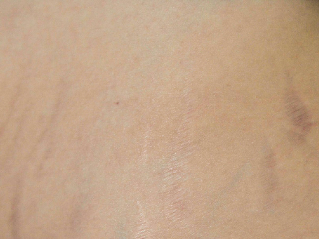 stretch mark cream results