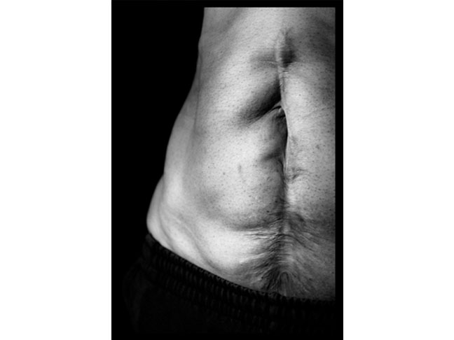 Cesarean section scar