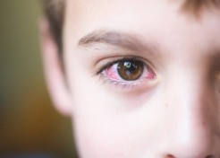 The Real Deal on Pink Eye, from Symptoms to Treatments
