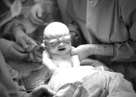 Why it's Ludicrous to Call C-Sections 'The Easy Way Out'